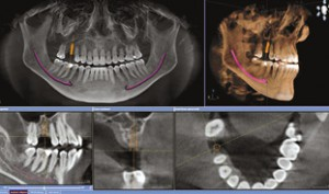 3d-xrays Michael Bass DDS PA