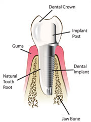 Dental Implants visual image showing abutment and crown